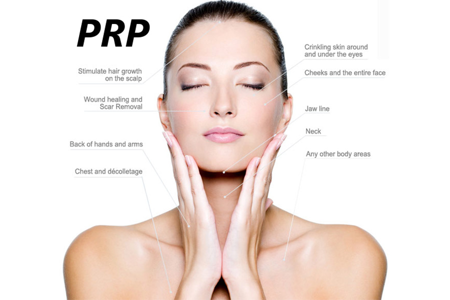 accent on skin PRP treatment wellington