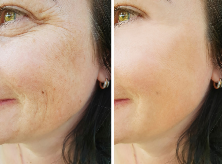 anti wrinkle before after wellington