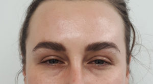 botox for frown lines after