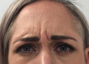 botox frown lines removal before
