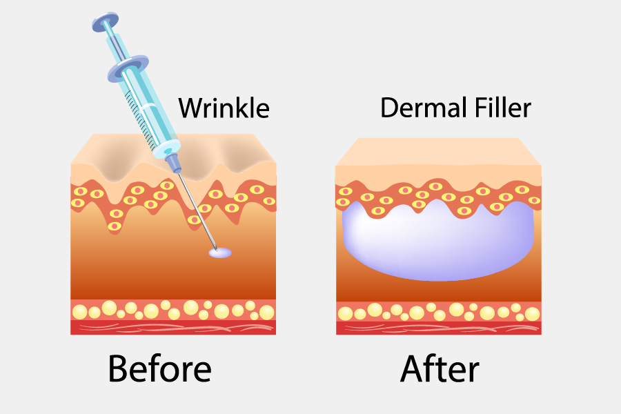 Accent on Skin - Dermal Filler