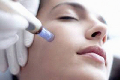 dermal needling wellington