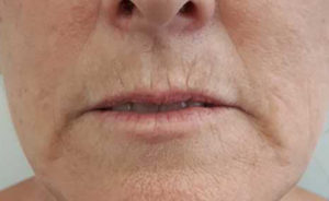 lip fillers wellington